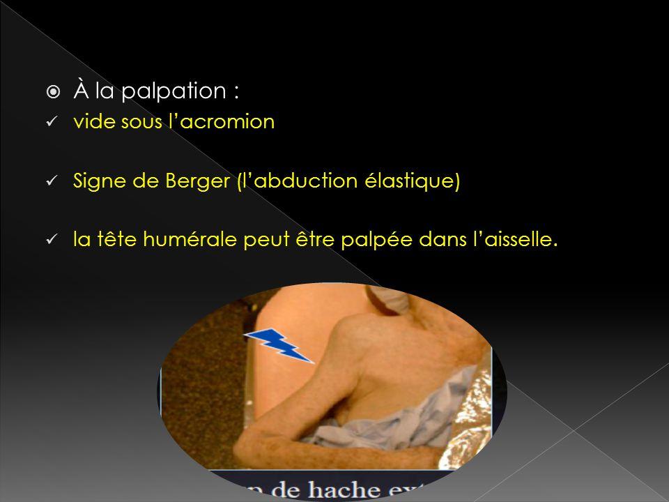 À la palpation : vide sous lacromion Signe de Berger (labduction élastique) la tête humérale peut être palpée dans laisselle.