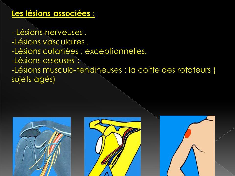 Les lésions associées : - Lésions nerveuses. -Lésions vasculaires. -Lésions cutanées : exceptionnelles. -Lésions osseuses : -Lésions musculo-tendineus
