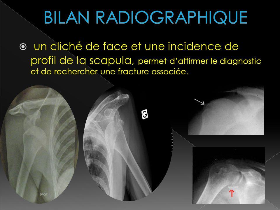 un cliché de face et une incidence de profil de la scapula, permet daffirmer le diagnostic et de rechercher une fracture associée.