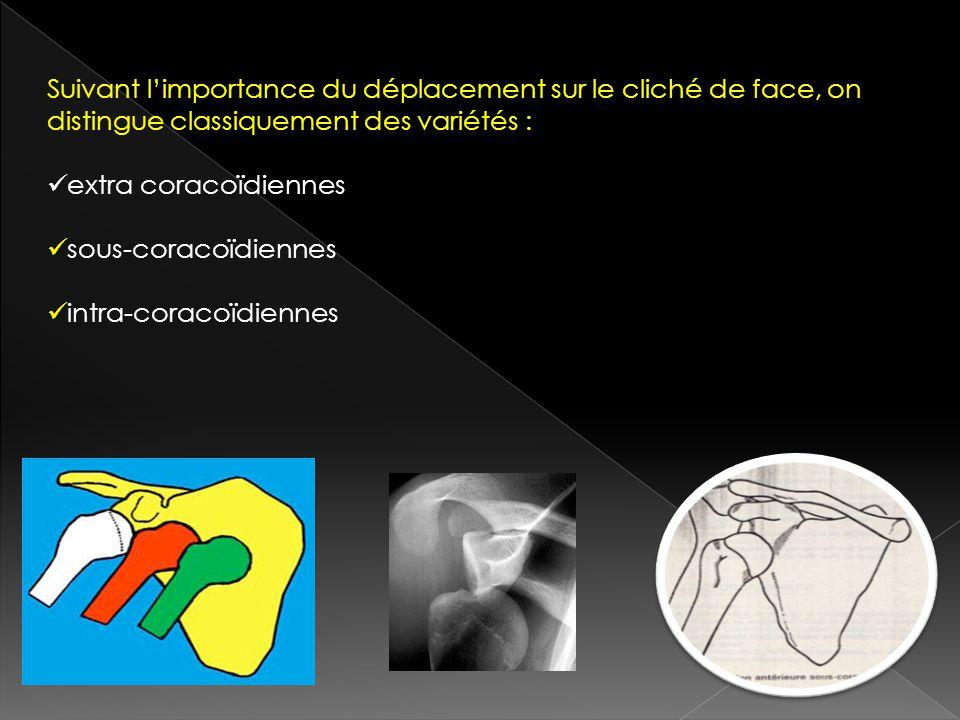 Suivant limportance du déplacement sur le cliché de face, on distingue classiquement des variétés : extra coracoïdiennes sous-coracoïdiennes intra-cor