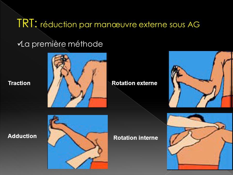TRT: réduction par manœuvre externe sous AG La première méthode TractionRotation externe Adduction Rotation interne