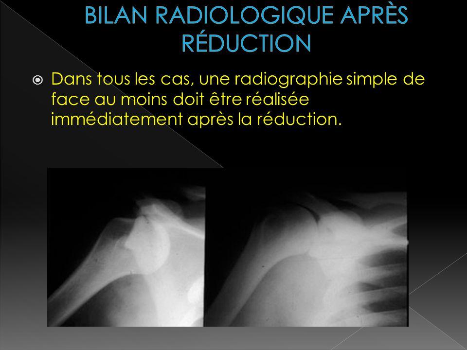 Dans tous les cas, une radiographie simple de face au moins doit être réalisée immédiatement après la réduction.