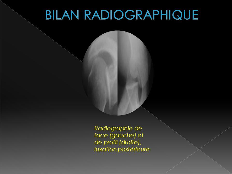 Radiographie de face (gauche) et de profil (droite), luxation postérieure