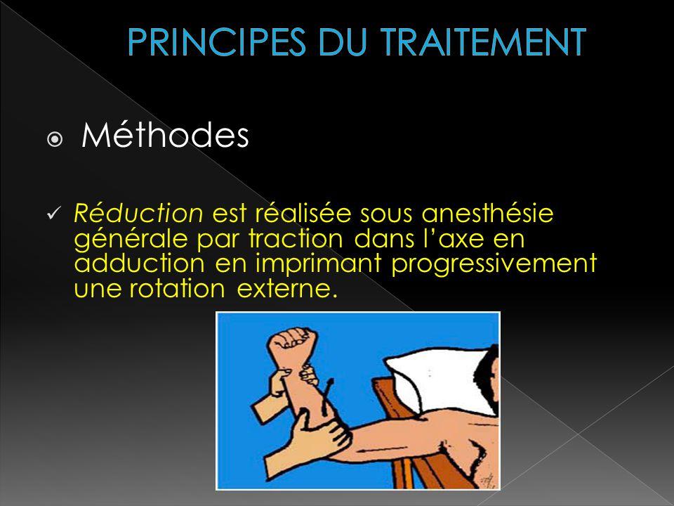Méthodes Réduction est réalisée sous anesthésie générale par traction dans laxe en adduction en imprimant progressivement une rotation externe.