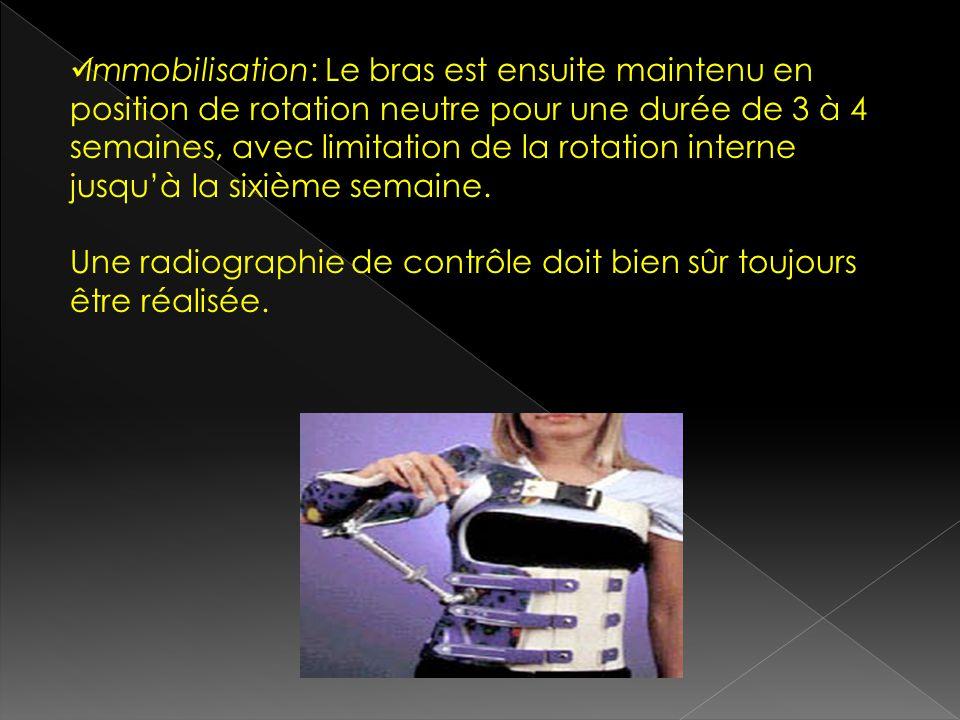 Immobilisation: Le bras est ensuite maintenu en position de rotation neutre pour une durée de 3 à 4 semaines, avec limitation de la rotation interne j