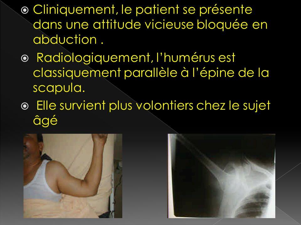 Cliniquement, le patient se présente dans une attitude vicieuse bloquée en abduction. Radiologiquement, lhumérus est classiquement parallèle à lépine