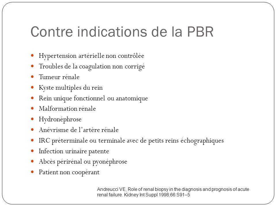 Contre indications de la PBR Hypertension artérielle non contrôlée Troubles de la coagulation non corrigé Tumeur rénale Kyste multiples du rein Rein u