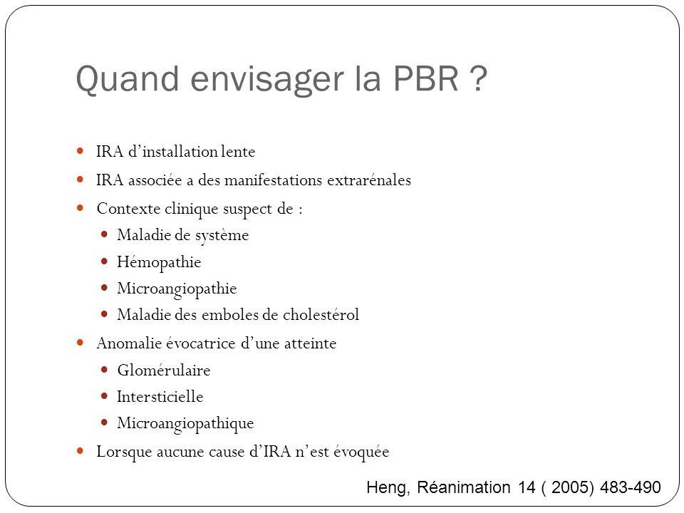 Quand envisager la PBR ? IRA dinstallation lente IRA associée a des manifestations extrarénales Contexte clinique suspect de : Maladie de système Hémo
