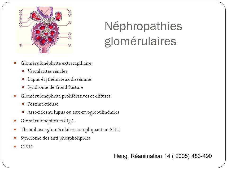 Néphropathies glomérulaires Glomérulonéphrite extracapillaire Vascularites rénales Lupus érythémateux disséminé Syndrome de Good Pasture Glomérulonéphrite prolifératives et diffuses Postinfectieuse Associées au lupus ou aux cryoglobulinémies Glomérulonéphrites à IgA Thromboses glomérulaires compliquant un SHU Syndrome des anti phospholipides CIVD Heng, Réanimation 14 ( 2005) 483-490
