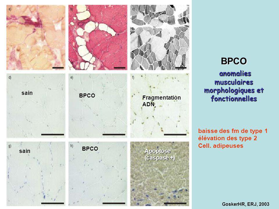 sain sain BPCO BPCO Apoptose (caspase +) FragmentationADN BPCO anomalies musculaires morphologiques et fonctionnelles GoskerHR, ERJ, 2003 baisse des f