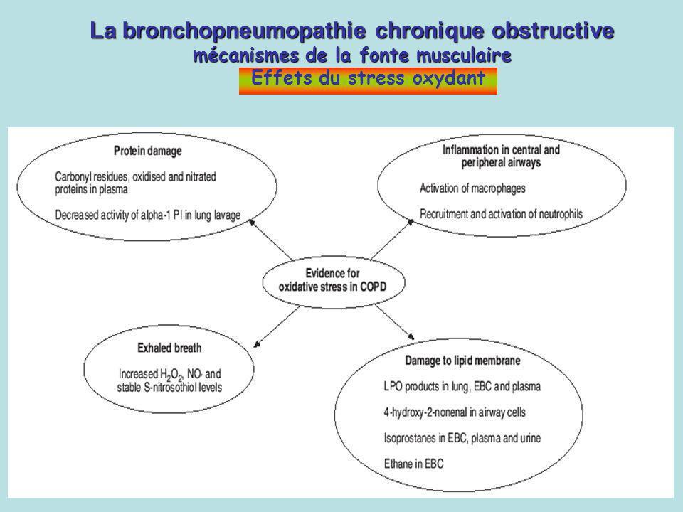 La bronchopneumopathie chronique obstructive mécanismes de la fonte musculaire La bronchopneumopathie chronique obstructive mécanismes de la fonte mus