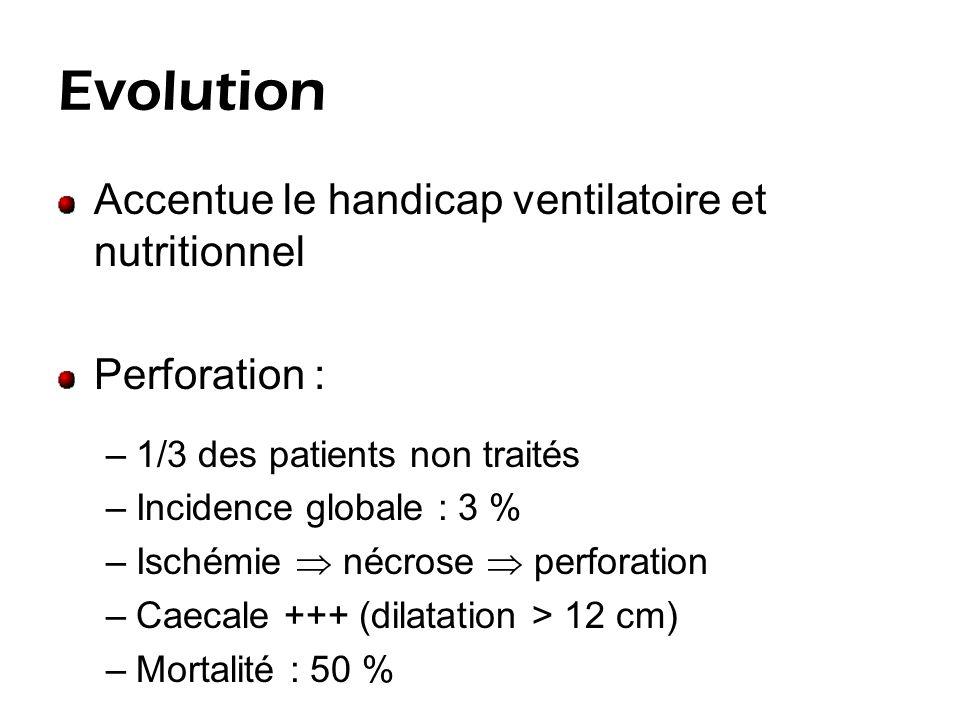 Clinique Distension abdominale diffuse Installation progressive Souvent pas ou peu douloureuse Etat général conservé Transit .