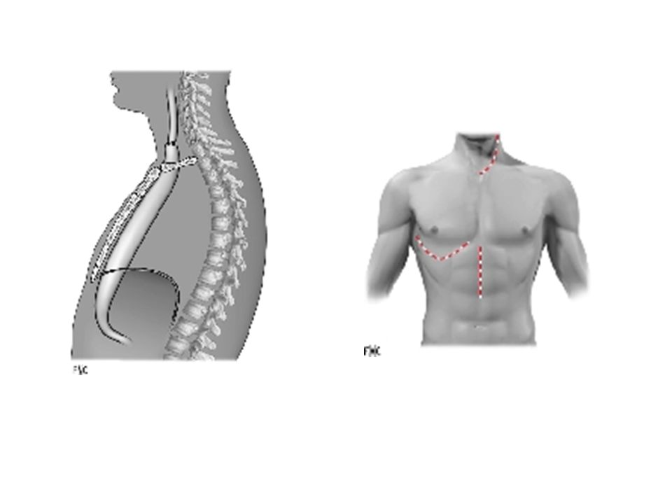 2.Retentissement de la chirurgie