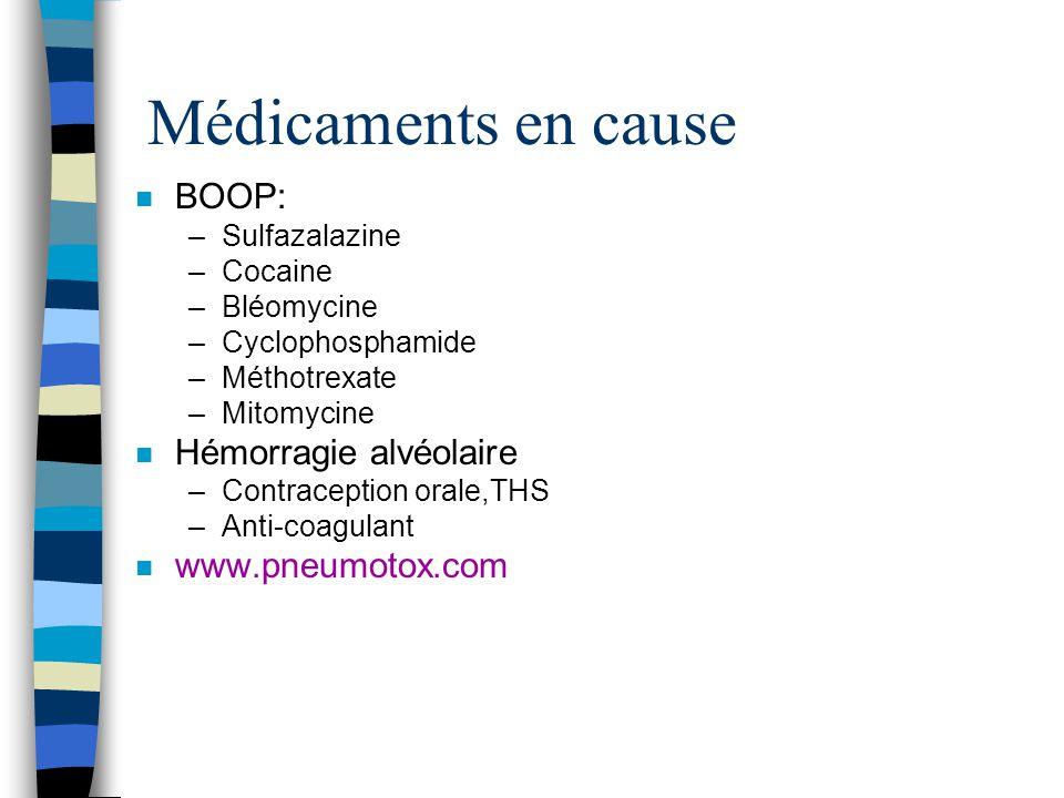 Médicaments en cause n BOOP: –Sulfazalazine –Cocaine –Bléomycine –Cyclophosphamide –Méthotrexate –Mitomycine n Hémorragie alvéolaire –Contraception or