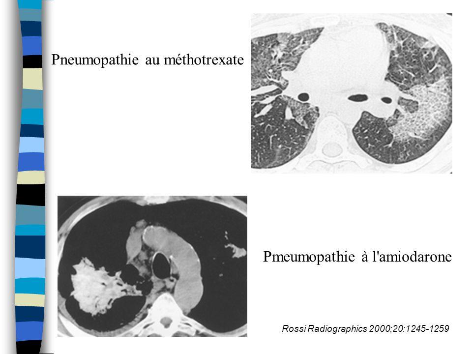 Critères diagnostiques n Critères biologiques –LBA: hypercellularité++ Polynucléaire: oédème lésionnel, pneumopathie fibrosante Éosinophile:agents anti-infectieux,AINS Alvéolite lymphocytaire, sous population CD8, présence de mastocytes++ Alvéolite panachée –LBA séquentiel