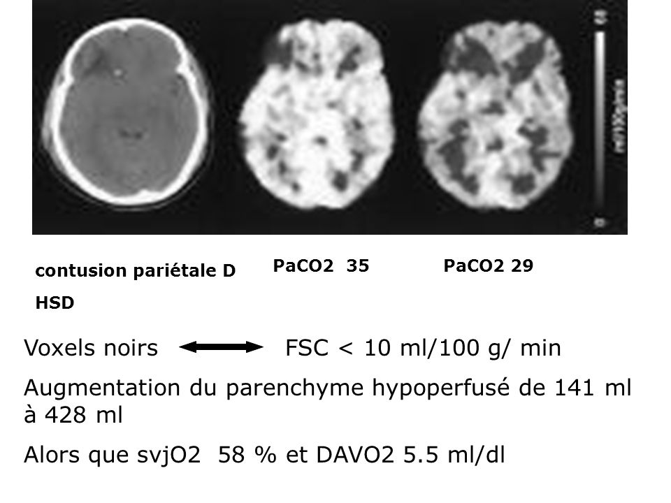 contusion pariétale D HSD PaCO2 35PaCO2 29 Voxels noirs FSC < 10 ml/100 g/ min Augmentation du parenchyme hypoperfusé de 141 ml à 428 ml Alors que svj