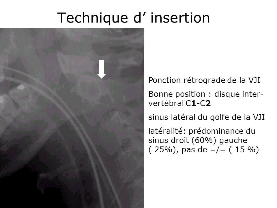 Technique d insertion Ponction rétrograde de la VJI Bonne position : disque inter- vertébral C1-C2 sinus latéral du golfe de la VJI latéralité: prédom