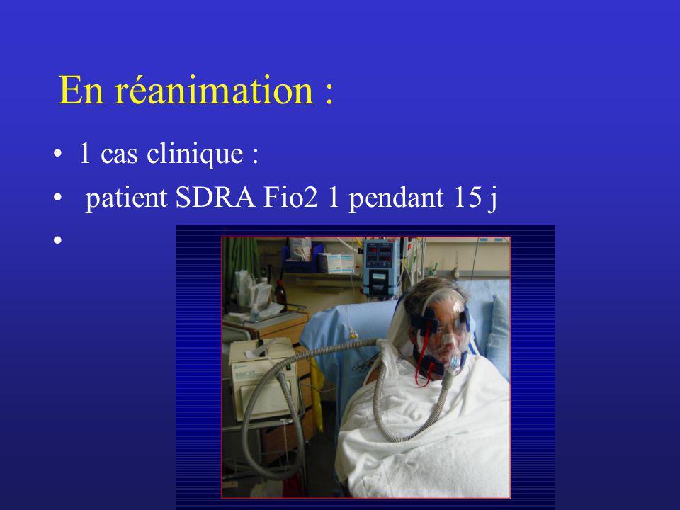 En réanimation : 1 cas clinique : patient SDRA Fio2 1 pendant 15 j