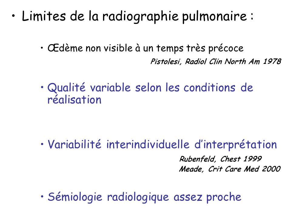 Limites de la radiographie pulmonaire : Œdème non visible à un temps très précoce Pistolesi, Radiol Clin North Am 1978 Qualité variable selon les cond