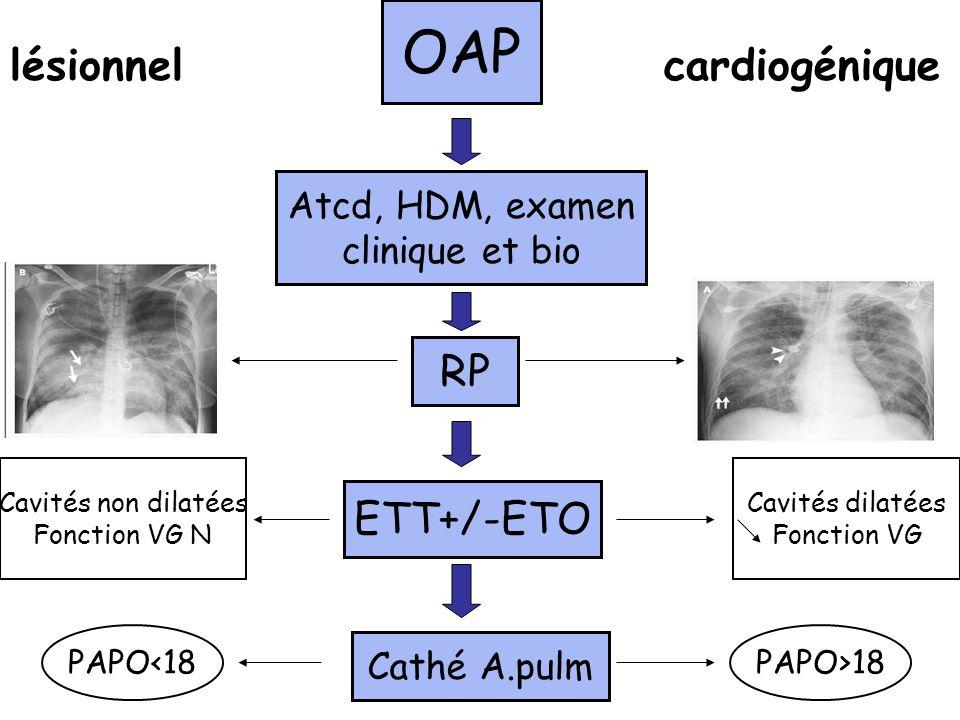 OAP Atcd, HDM, examen clinique et bio RP ETT+/-ETO Cathé A.pulm PAPO>18PAPO<18 lésionnelcardiogénique Cavités dilatées Fonction VG Cavités non dilatée