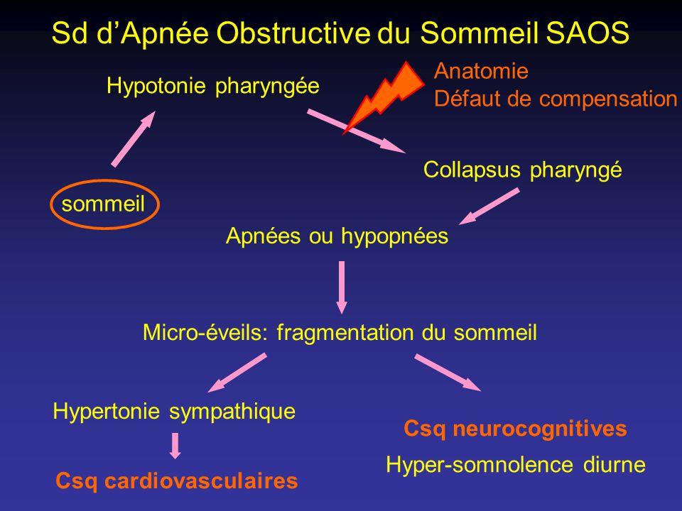 Sd dApnée Obstructive du Sommeil SAOS sommeil Hypotonie pharyngée Collapsus pharyngé Apnées ou hypopnées Micro-éveils: fragmentation du sommeil Hypert