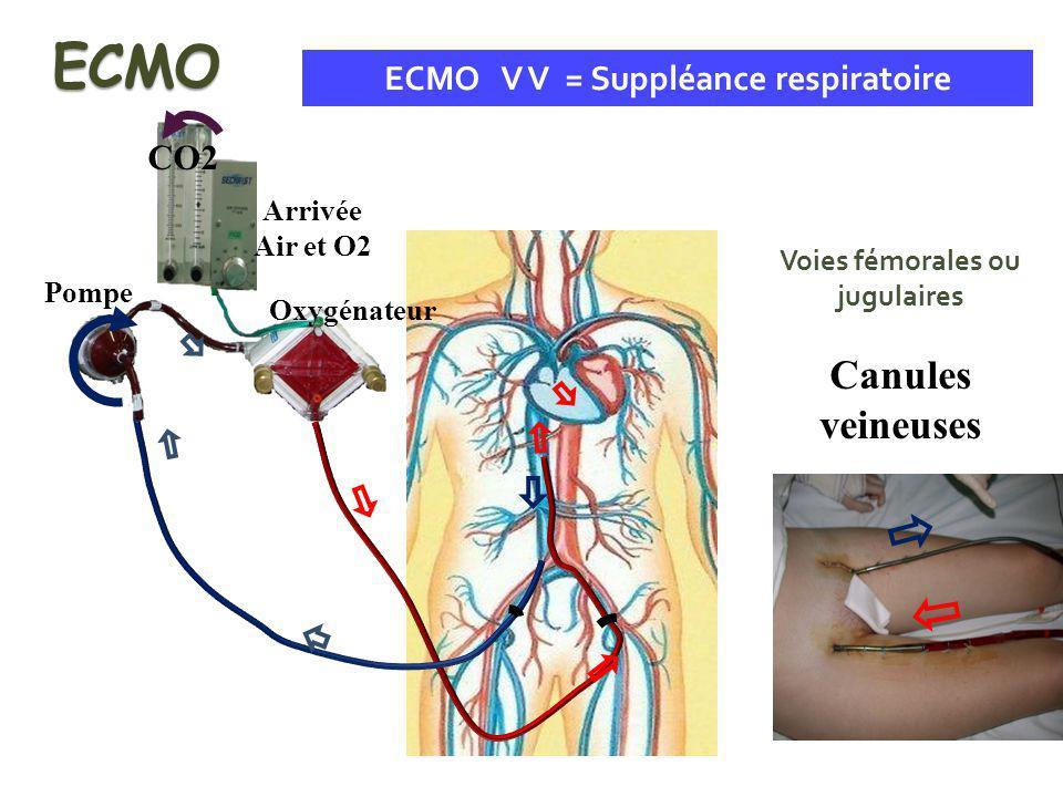Pompe Arrivée Air et O2 Oxygénateur CO2 ECMO V V = Suppléance respiratoire Voies fémorales ou jugulaires Canules veineuses ECMO