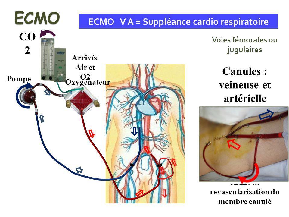 Shunt de revascularisation du membre canulé ECMO V A = Suppléance cardio respiratoire Voies fémorales ou jugulaires Canules : veineuse et artérielle E