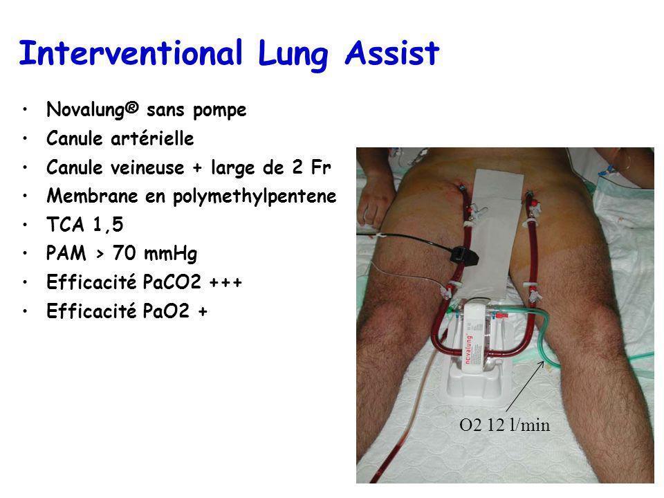 Interventional Lung Assist Novalung® sans pompe Canule artérielle Canule veineuse + large de 2 Fr Membrane en polymethylpentene TCA 1,5 PAM > 70 mmHg