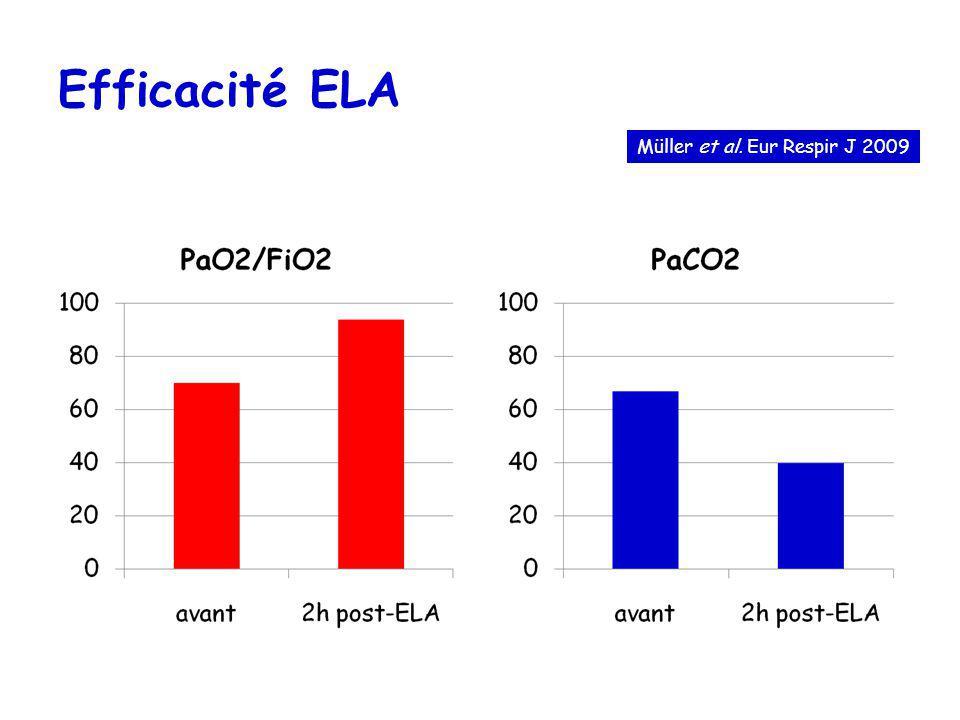 Efficacité ELA Müller et al. Eur Respir J 2009