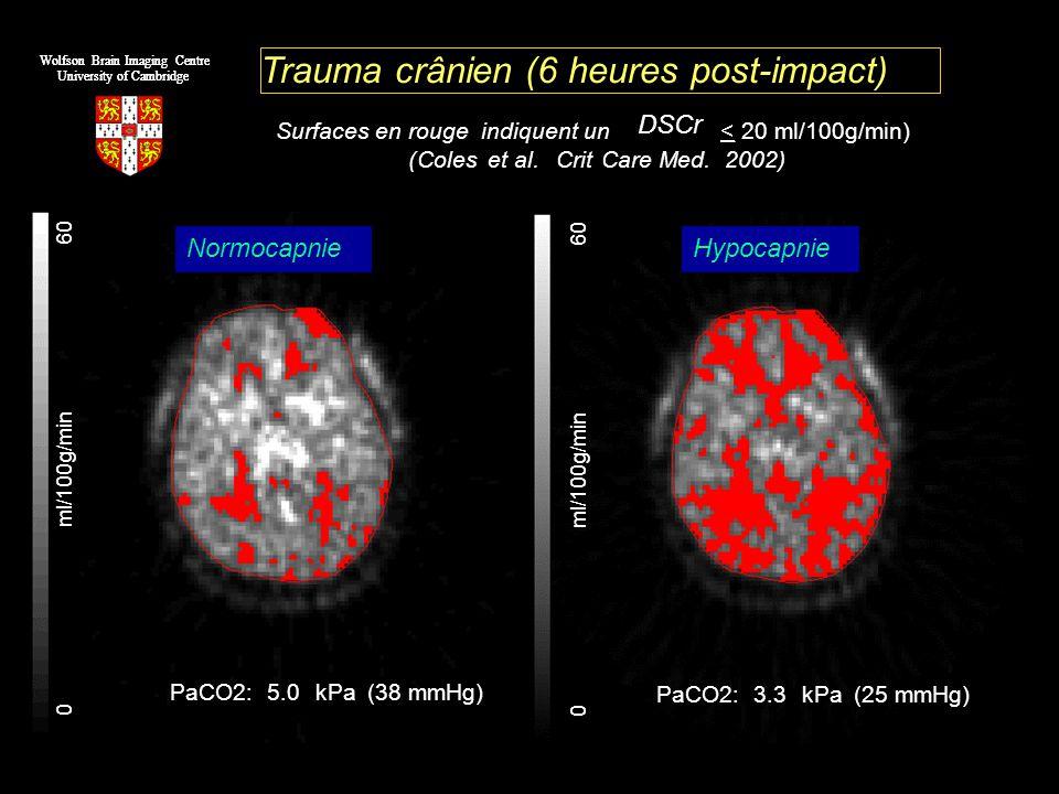 0 ml/100g/min 60 Trauma crânien (6 heures post-impact) Surfaces en rouge indiquent un DSCr <20 ml/100g/min) (Coleset al.CritCare Med.