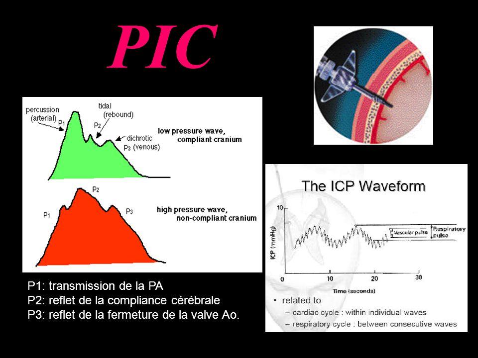 P1: transmission de la PA P2: reflet de la compliance cérébrale P3: reflet de la fermeture de la valve Ao.