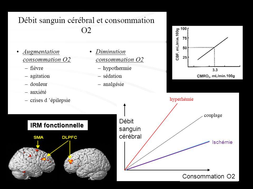 Débit sanguin cérébral Consommation O2 IRM fonctionnelle Ischémie