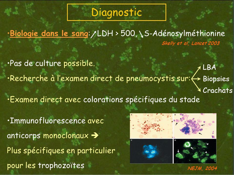 Biologie dans le sang: LDH > 500, S-Adénosylméthionine Pas de culture possible. Recherche à lexamen direct de pneumocystis sur: Examen direct avec col