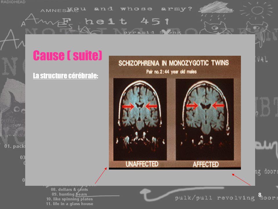 8 Cause ( suite) La structure cérébrale: