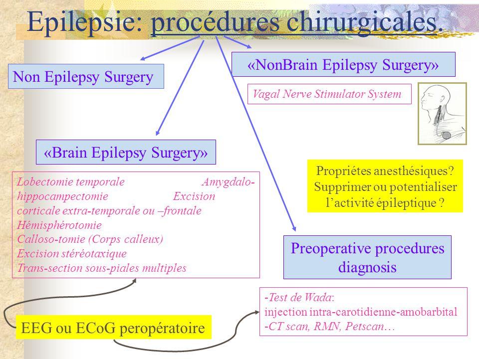 Epilepsie: procédures chirurgicales.