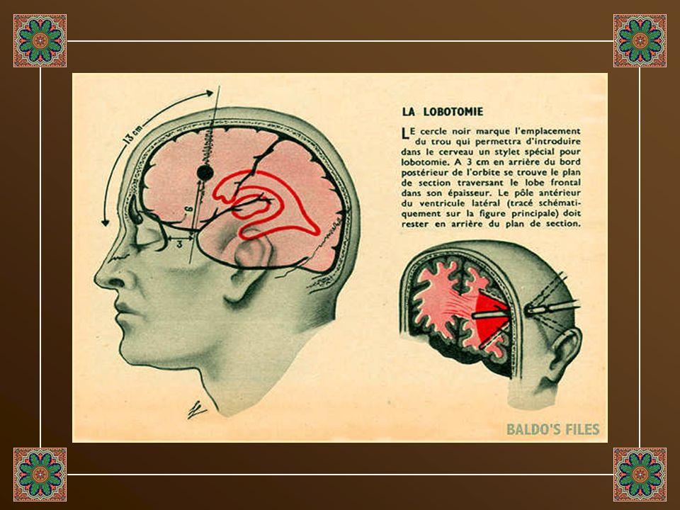 Durant la décennie qui suivit la seconde Guerre mondiale, le Dr. Walter Freeman pratiqua plus de 3500 lobotomies (intervention très controversée qui c