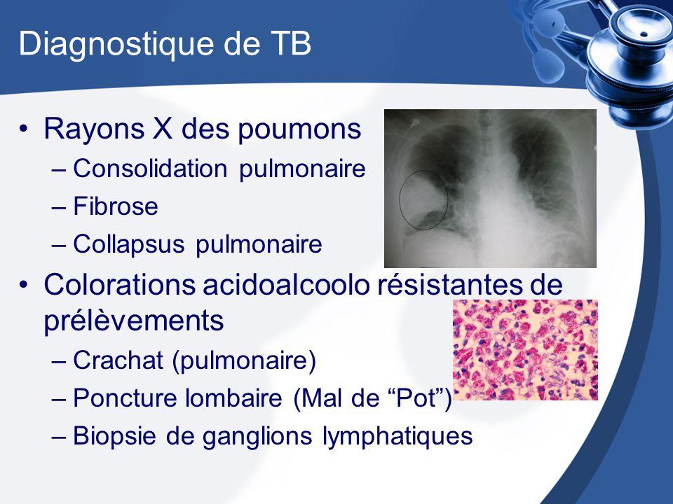 Diagnostique de TB Rayons X des poumons –Consolidation pulmonaire –Fibrose –Collapsus pulmonaire Colorations acidoalcoolo résistantes de prélèvements –Crachat (pulmonaire) –Poncture lombaire (Mal de Pot) –Biopsie de ganglions lymphatiques
