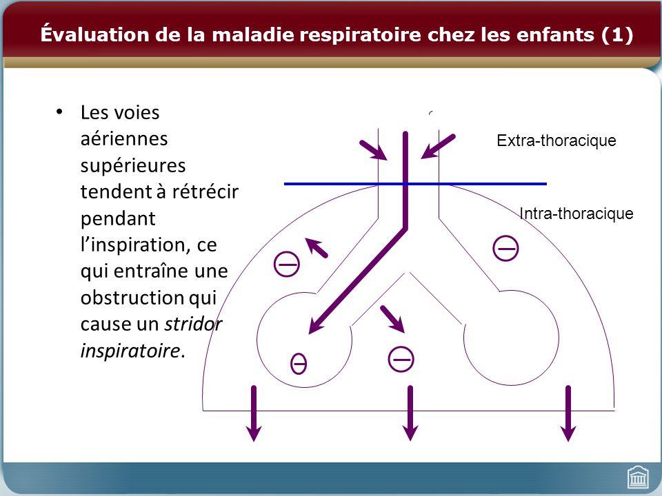 Évaluation de la maladie respiratoire chez les enfants (1) Les voies aériennes supérieures tendent à rétrécir pendant linspiration, ce qui entraîne une obstruction qui cause un stridor inspiratoire.