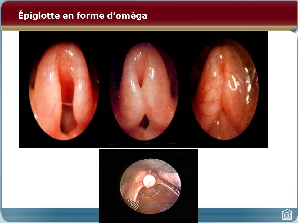 Épiglotte en forme doméga