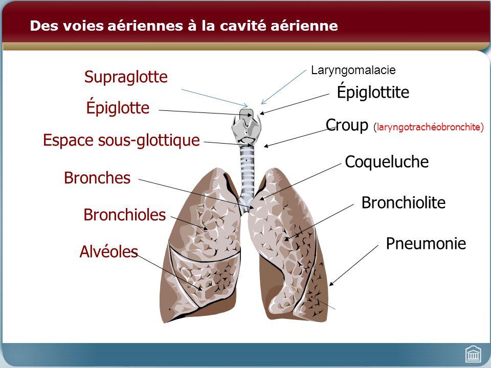 Des voies aériennes à la cavité aérienne Épiglottite Croup (laryngotrachéobronchite) Coqueluche Bronchiolite Pneumonie Épiglotte Espace sous-glottique Bronches Bronchioles Alvéoles Supraglotte Laryngomalacie