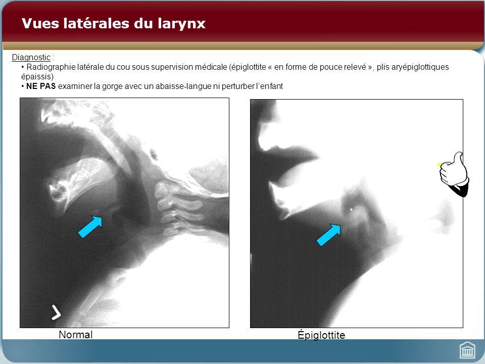 Vues latérales du larynx Normal Épiglottite Diagnostic : Radiographie latérale du cou sous supervision médicale (épiglottite « en forme de pouce relevé », plis aryépiglottiques épaissis) NE PAS examiner la gorge avec un abaisse-langue ni perturber lenfant