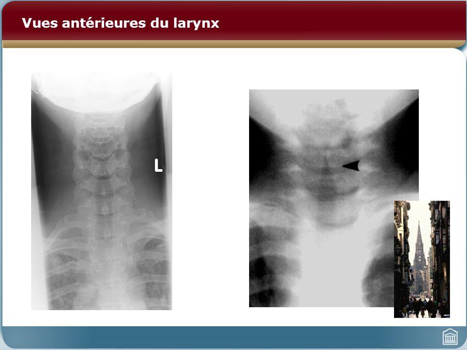 Vues antérieures du larynx