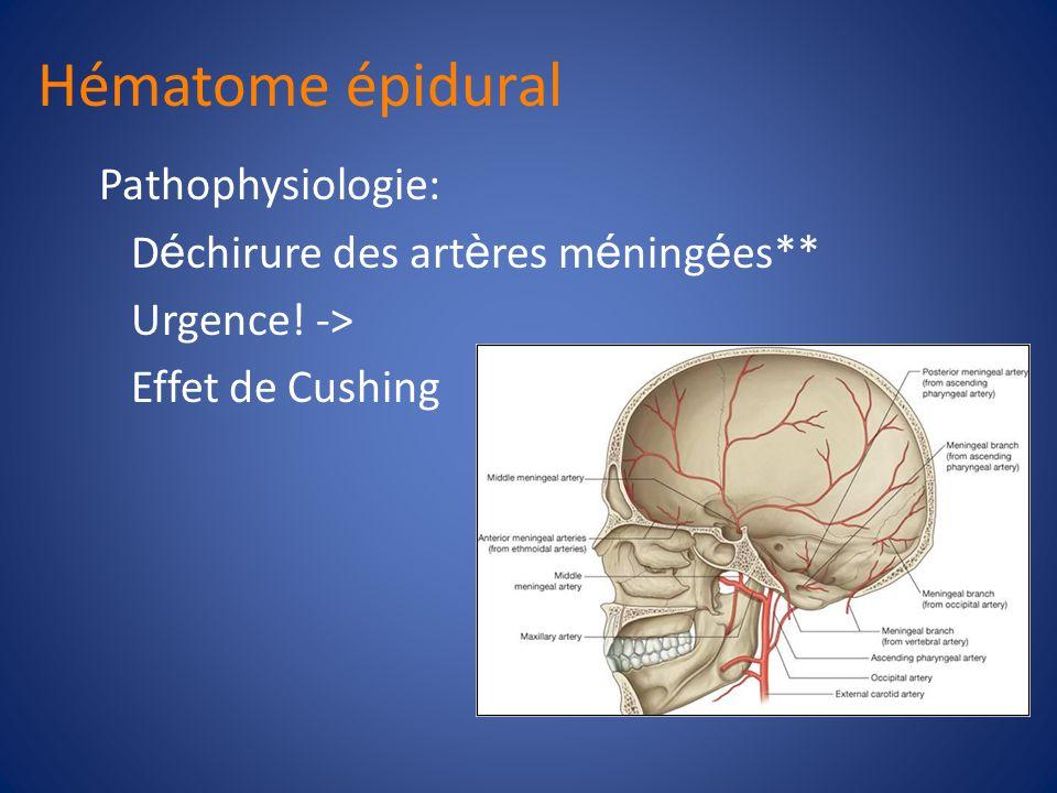 Hématome épidural Souvent associ é es avec les fractures crâniennes R é gions temporales et parietales Croissance limit é e par les sutures du crâne A