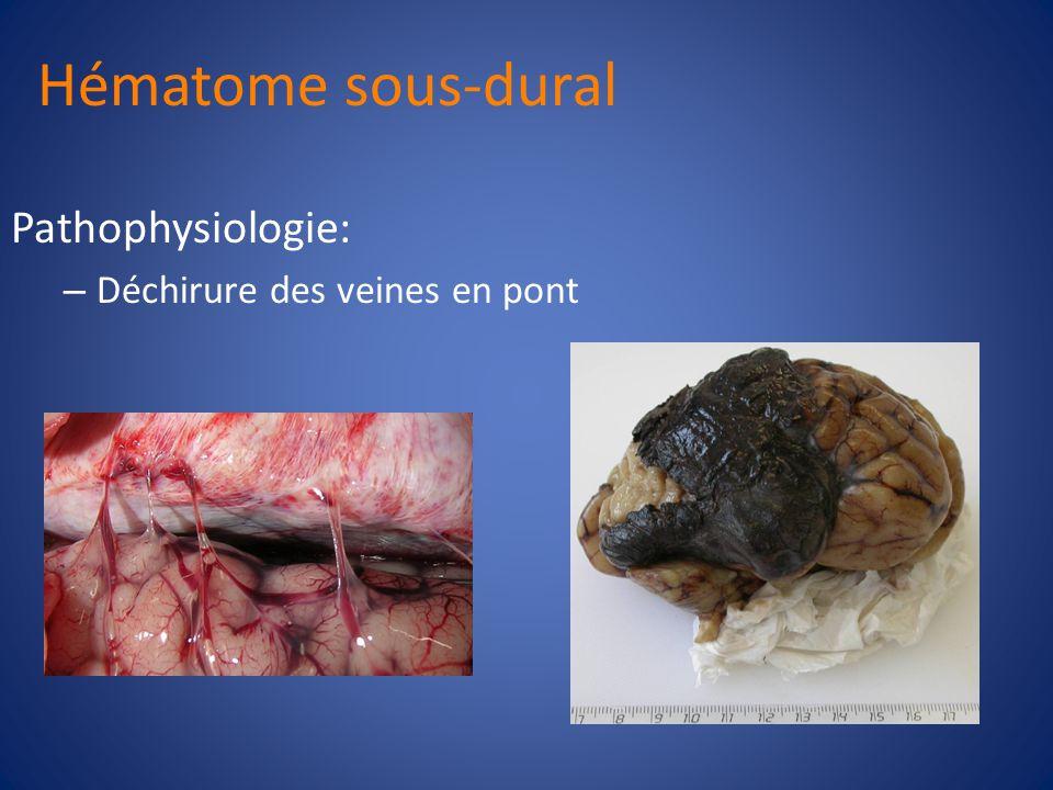 Hématome sous-dural Espace sous-dural Lhématome le plus courrant Aigu, sous-aigu, chronique Croissance limitée par les pliements duraux