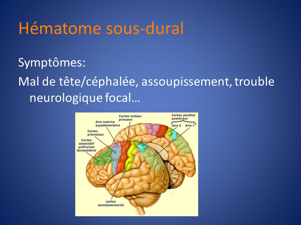 Hématome sous-dural Conséquences cliniques: – Effet de masse +/-Contusions cérébrales, oédème cérébrale