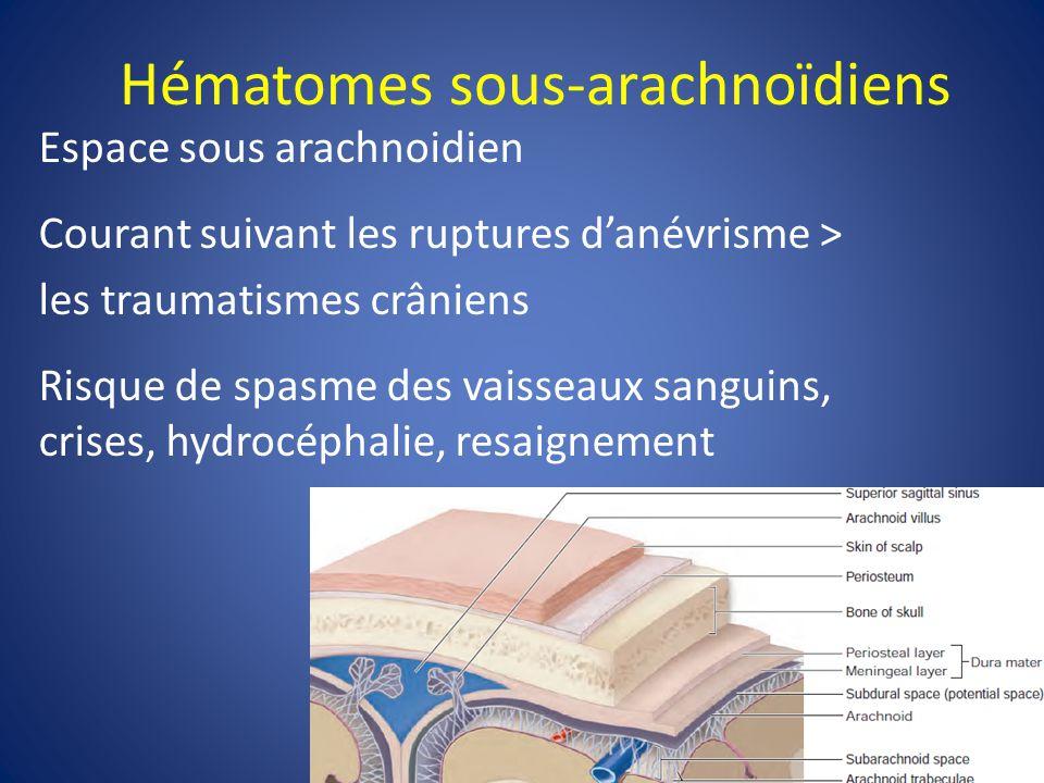 Hématome sous-dural Symptômes: Mal de tête/céphalée, assoupissement, trouble neurologique focal…