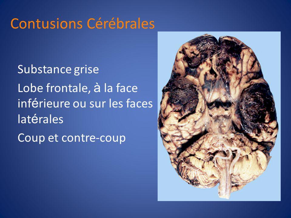 Contusions Cérébrales Les lésions les plus fréquemment observées Multiples et confluentes Ne causent rarement des troubles de conscience