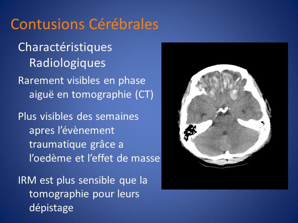 Contusions Cérébrales Substance grise Lobe frontale, à la face inf é rieure ou sur les faces lat é rales Coup et contre-coup