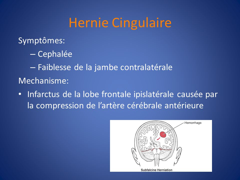Types dhernies 1) Subfalcine (Cingulaire) 2) Transtentoriale a)Unciforme b)Centrale / 3) Transforaminale – Amygdalaire (cervelet)