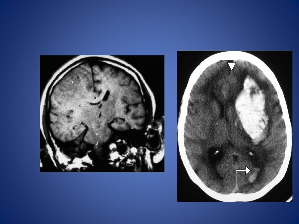 Hernie Cingulaire Symptômes: – Cephalée – Faiblesse de la jambe contralatérale Mechanisme: Infarctus de la lobe frontale ipislatérale causée par la co